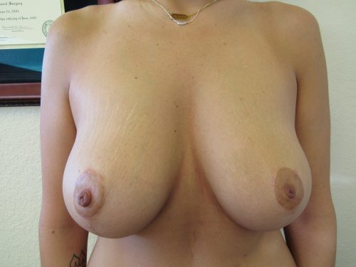 after breast lift patient 1