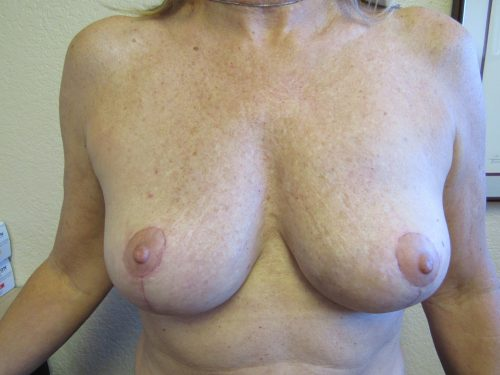 after breast lift patient 2