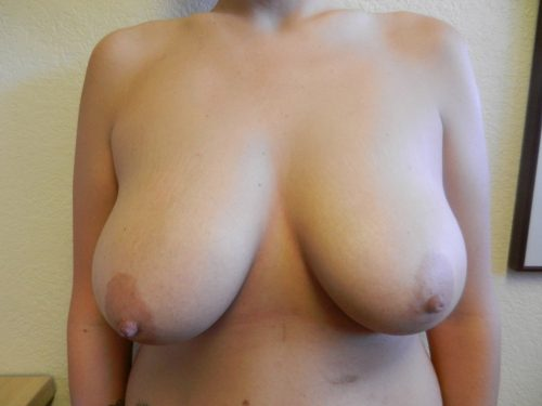 before breast lift patient 1