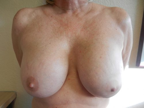 before breast lift patient 2