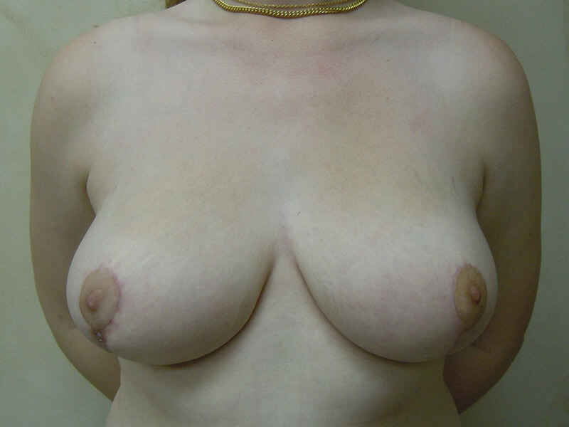 after breast reduction patient 1