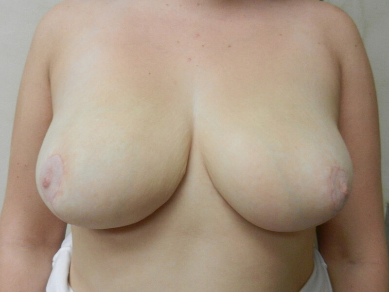 after breast reduction patient 2