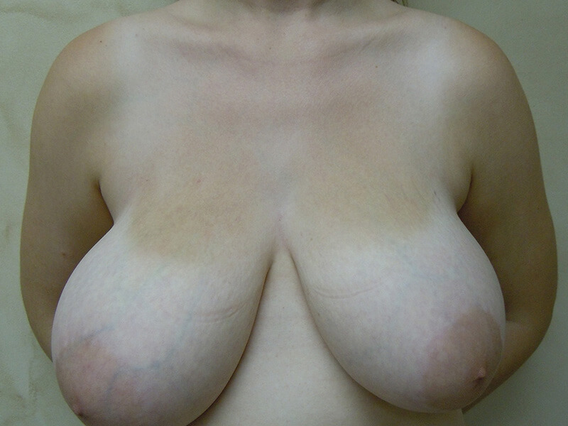 before breast reduction patient 1