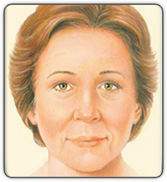 Brow Lift Illustration Front View