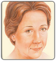 Brow Lift Illustration 45 Degrees View