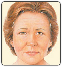 Brow Lift Incision Illustration Front View