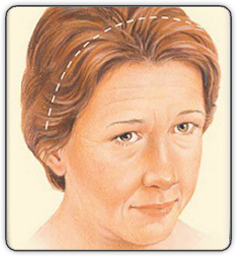 Brow Lift Incision Illustration 45 Degrees View