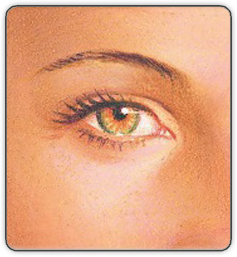 After Lower eyelid surgery illustration