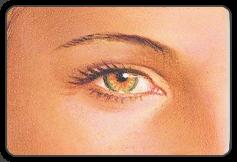 illustration after upper eyelid surgery