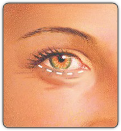 before Lower eyelid surgery illustration