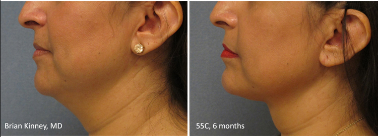 Before and 6 months after ThermiTight Treatment Patient 1.