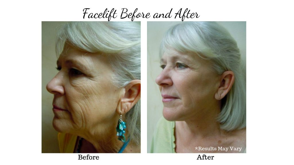 Before and After photos of Facelift Patient