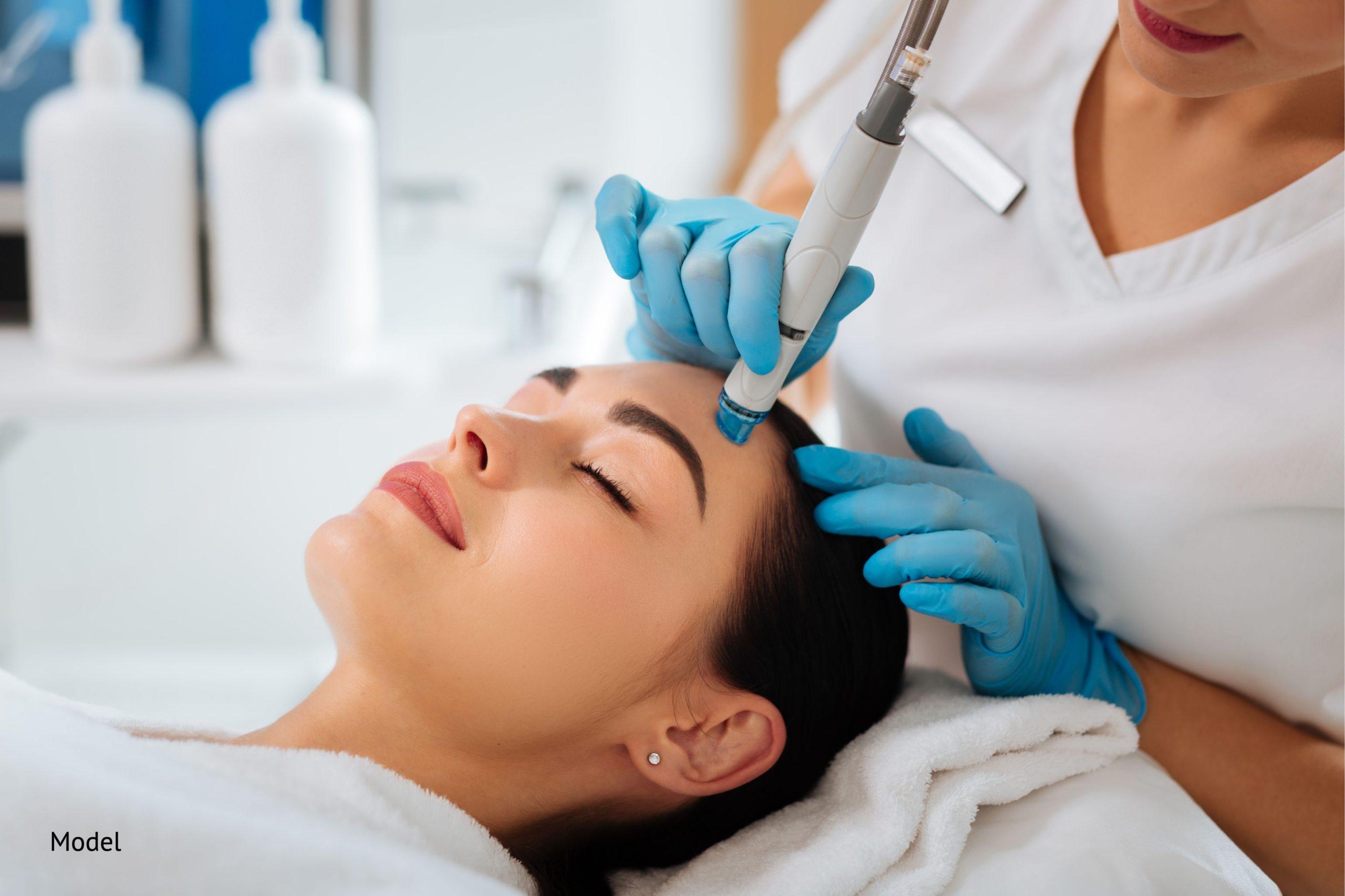 Microneedling treatment using a dermapen on a woman