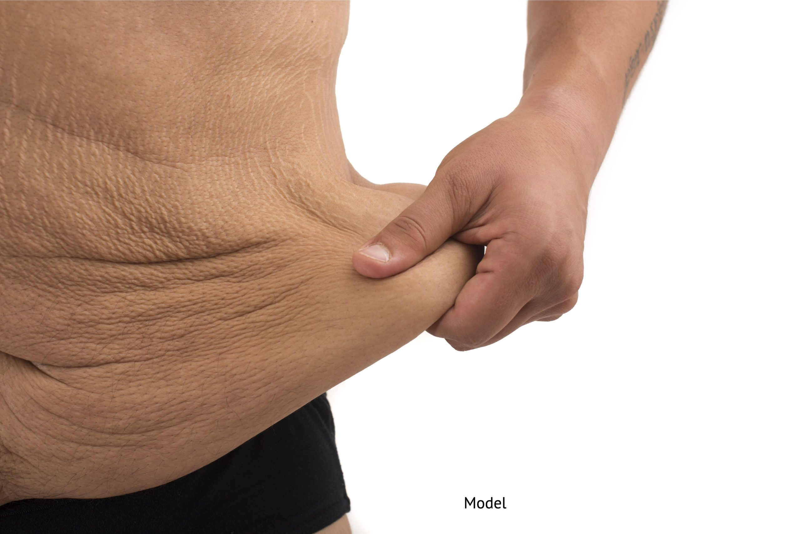 man with excess skin on the abdomen who could benefit from skin removal surgery