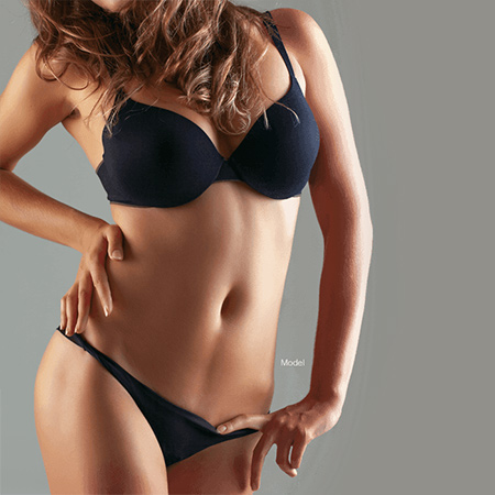 abdominoplasty model